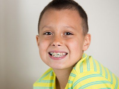 Young boy smiling with phase one orthodontic appliance