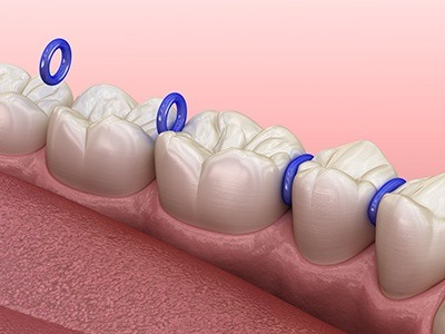 Animated teeth with space mainters in place